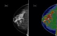 Changing mammogram technology.  Photo credit: NASA